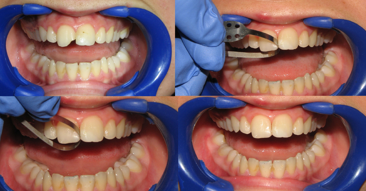 central incisor with Class IV fracture that was restored with direct composite